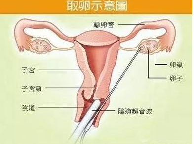 试管婴儿治疗中取卵手术肯定会痛,但要不要打麻醉呢