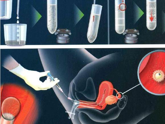 试管婴儿移植第三天胚胎好还是移植第五天囊胚好?