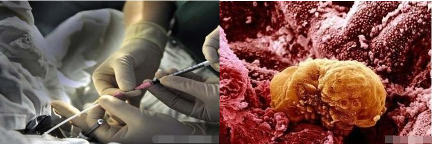 神秘的辅助生殖,试管婴儿受精究竟是怎么做到的?让你看到整个过程