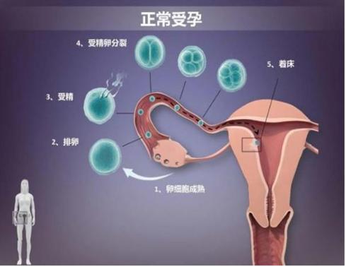 试管婴儿成功率是哪几个原因?