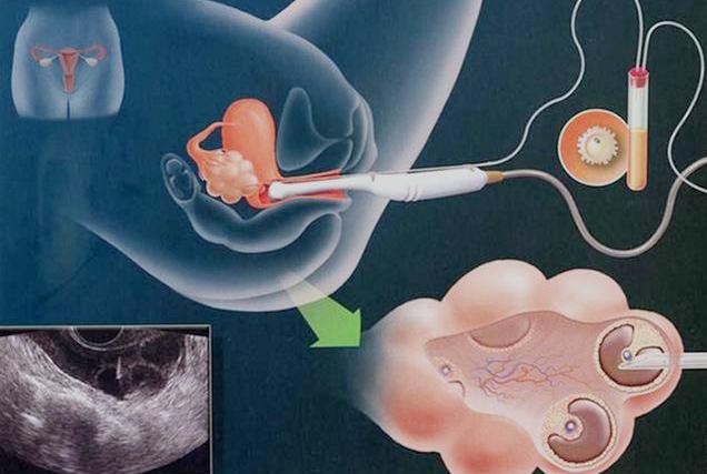 赴泰做试管婴儿全过程,了解试管婴儿的各个环节