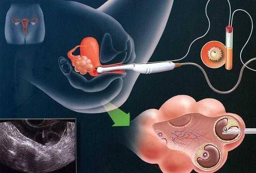 试管婴儿女性打排卵针