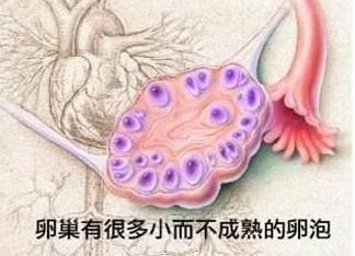 卵巢有很多小而不成熟的卵泡