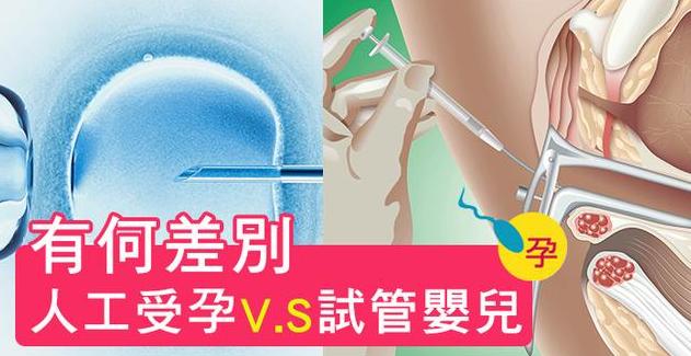 人工授精与泰国试管婴儿有什么差别?