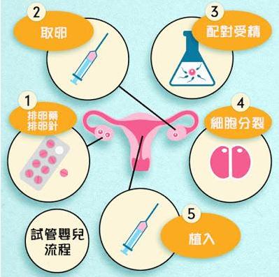 泰国试管婴儿流程
